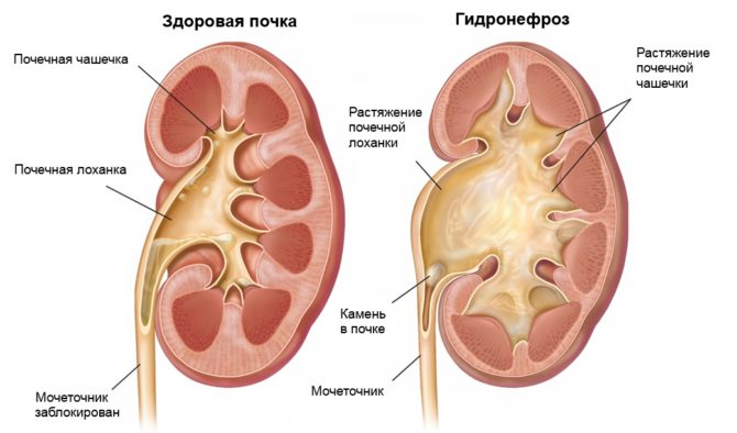 Схема здоровой почки и гидронефроза