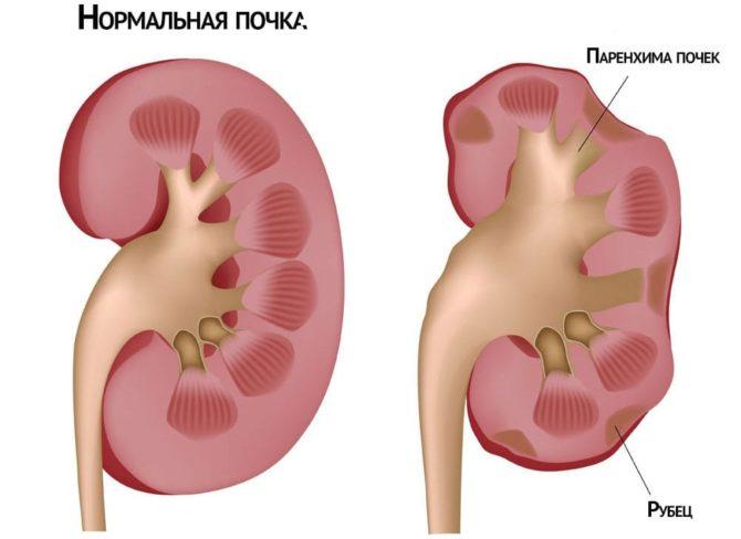 Изменение органа при хронической болезни почек