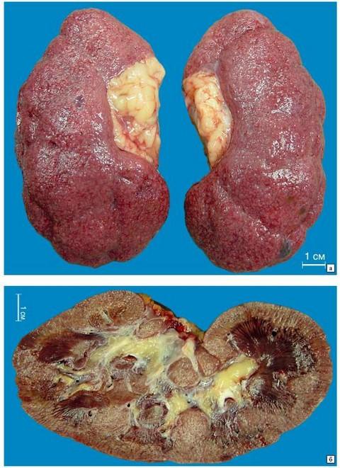 Как выглядят почки при нефросклерозе