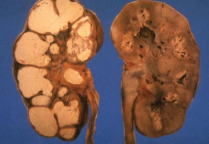 Как выглядят почки при туберкулёзе