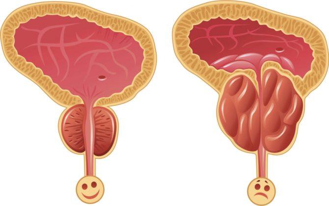 Предстательная железа в норме и гипертрофированная