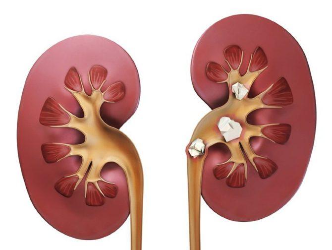 Почки: здоровая и поражённая мочекаменной болезнью