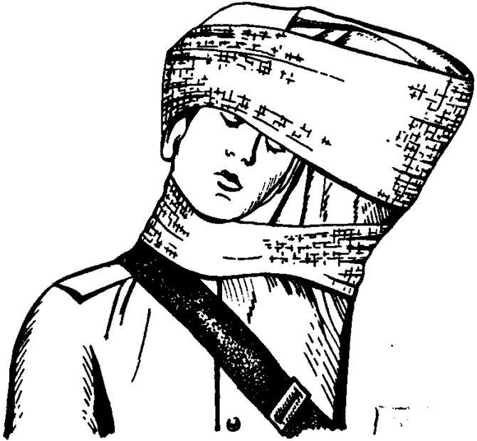 Наложение жгута на шею