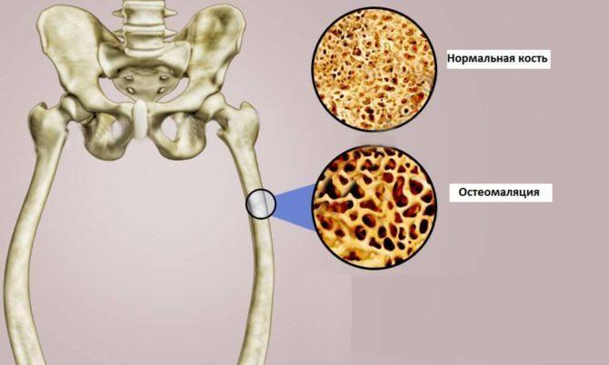 Остеодистрофия