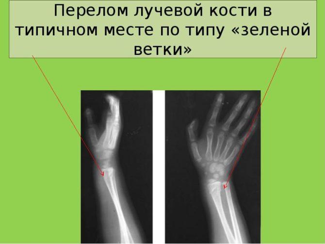Перелом по типу зелёной ветки