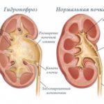 Почка при гидронефрозе и нормальный орган