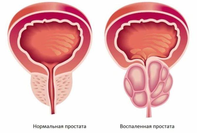 Простата в норме и воспалённая