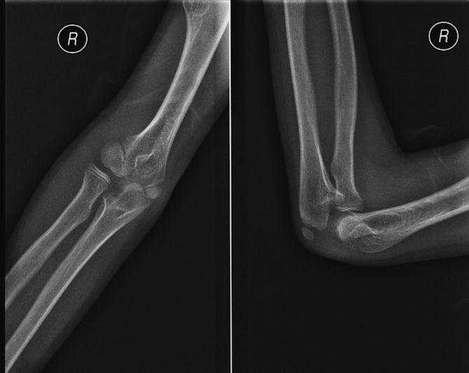 Рентгеновский снимок вывиха локтя