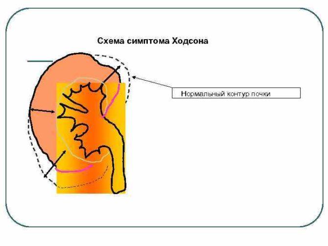 Схема симптома Ходсона