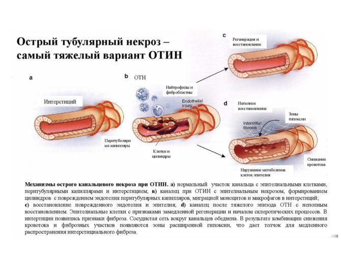 Тубулярный некроз