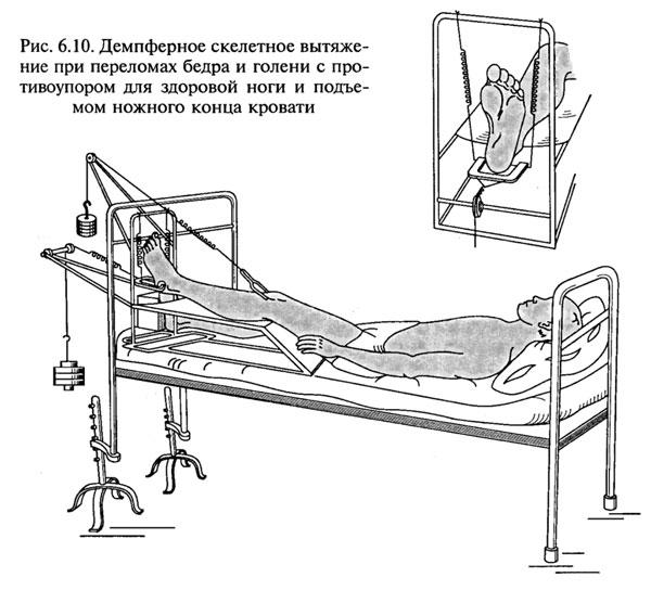 Скелетное вытяжение при переломах бедра и голени на рисунке