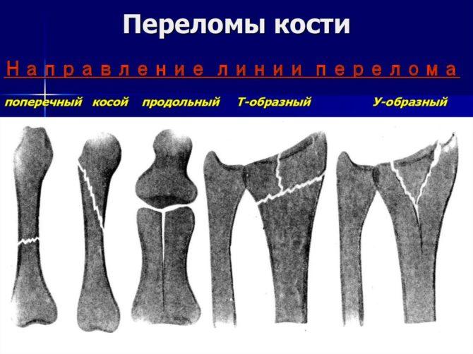 Виды переломов по форме