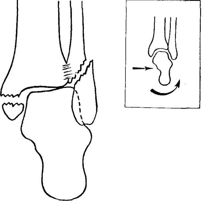Схема здорового и повреждённого сустава