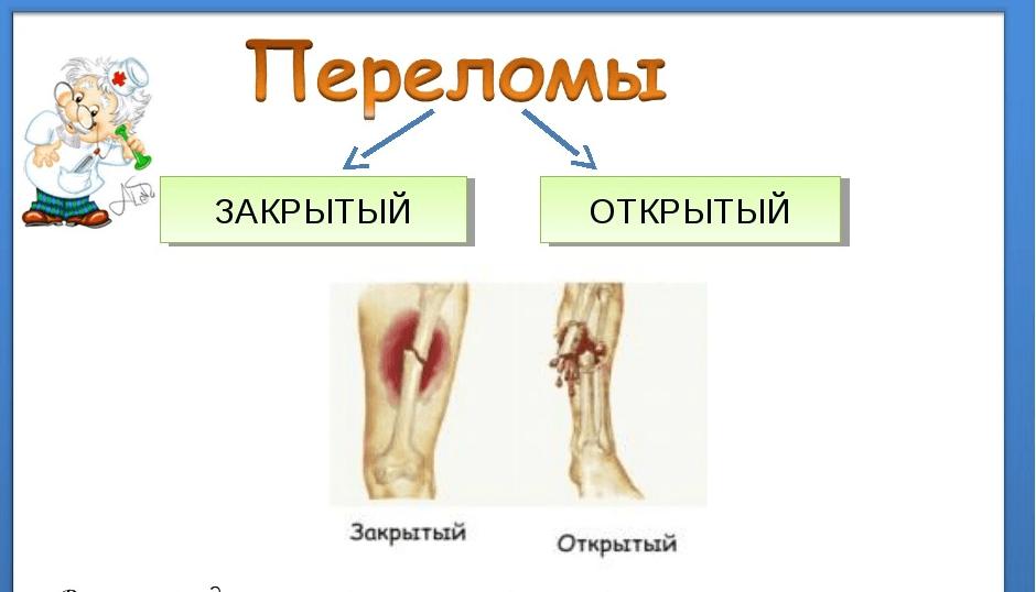 Признаки закрытого перелома костей конечностей