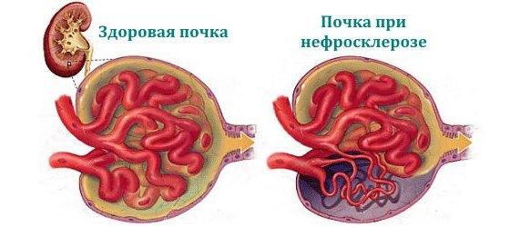 Здоровая почка и орган при нефросклерозе