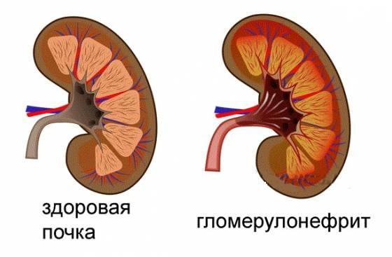 Сравнение здоровой почки и почки при остром гломерулонефрите