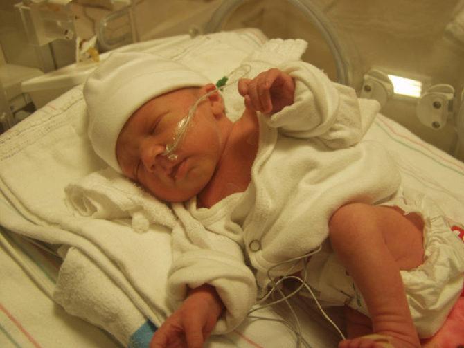 Новорождённый в реанимации