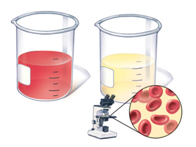 Две пробирки с мочой и капля урины под микроскопом