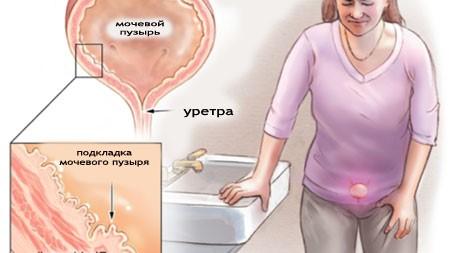 Изменения слизистой мочевого пузыря и уретры в период менопаузы