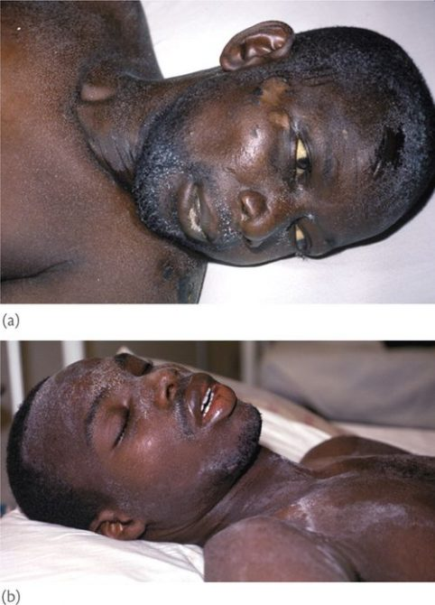 Афроамериканец с белыми образованиями на лице
