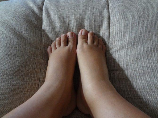 Отёки на ногах