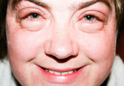 Отёкшее лицо женщины