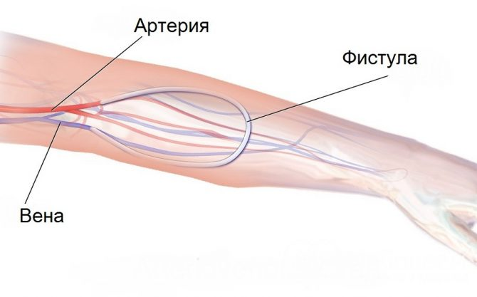 Рука с веной и артерией