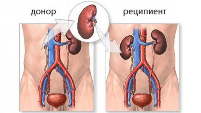 Схема пересадки почки от донора реципиенту
