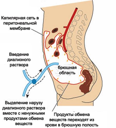 Схема перитонеального диализа