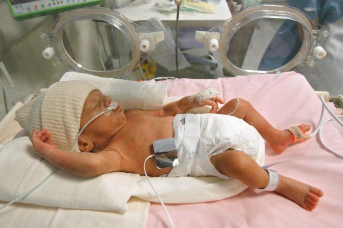 Недоношенный ребёнок