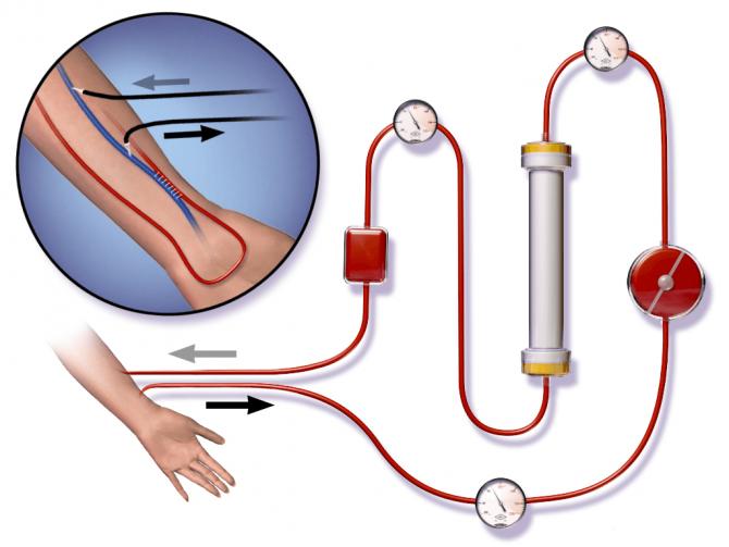 Сущность процедуры гемодиализа