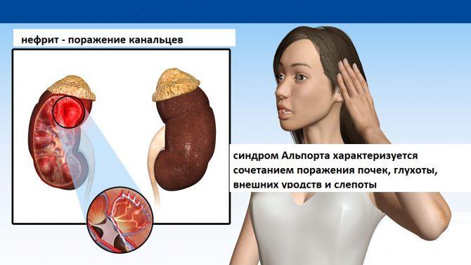 Триада, типичная для синдрома Альпорта