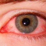 Покраснение белка глаза