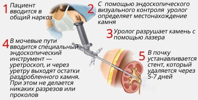 изображение нефроскопии и краткое описание выполнения