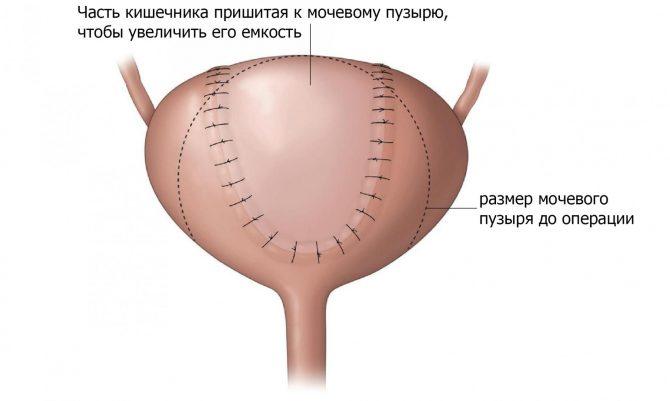 Кишечная пластика мочевого пузыря