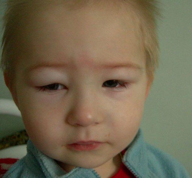 Отёк лица у ребёнка с нефротическим синдромом