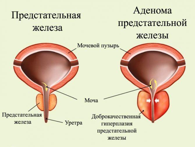 Здоровая простата и аденома