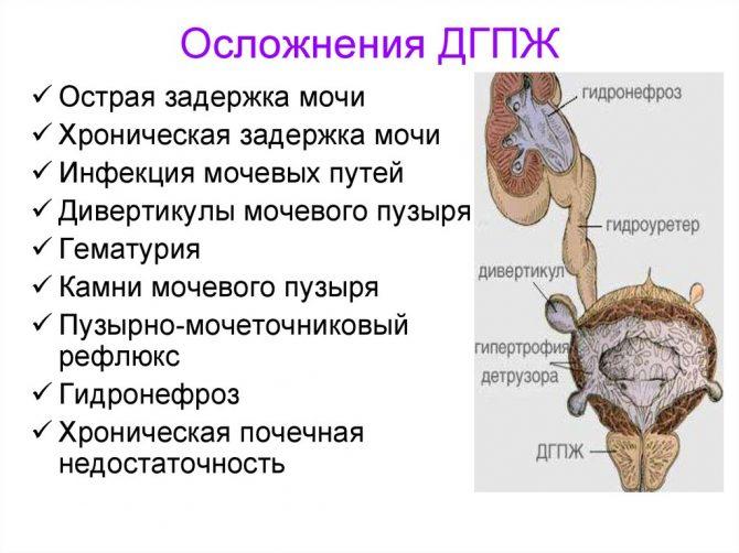 Осложнения аденомы простаты