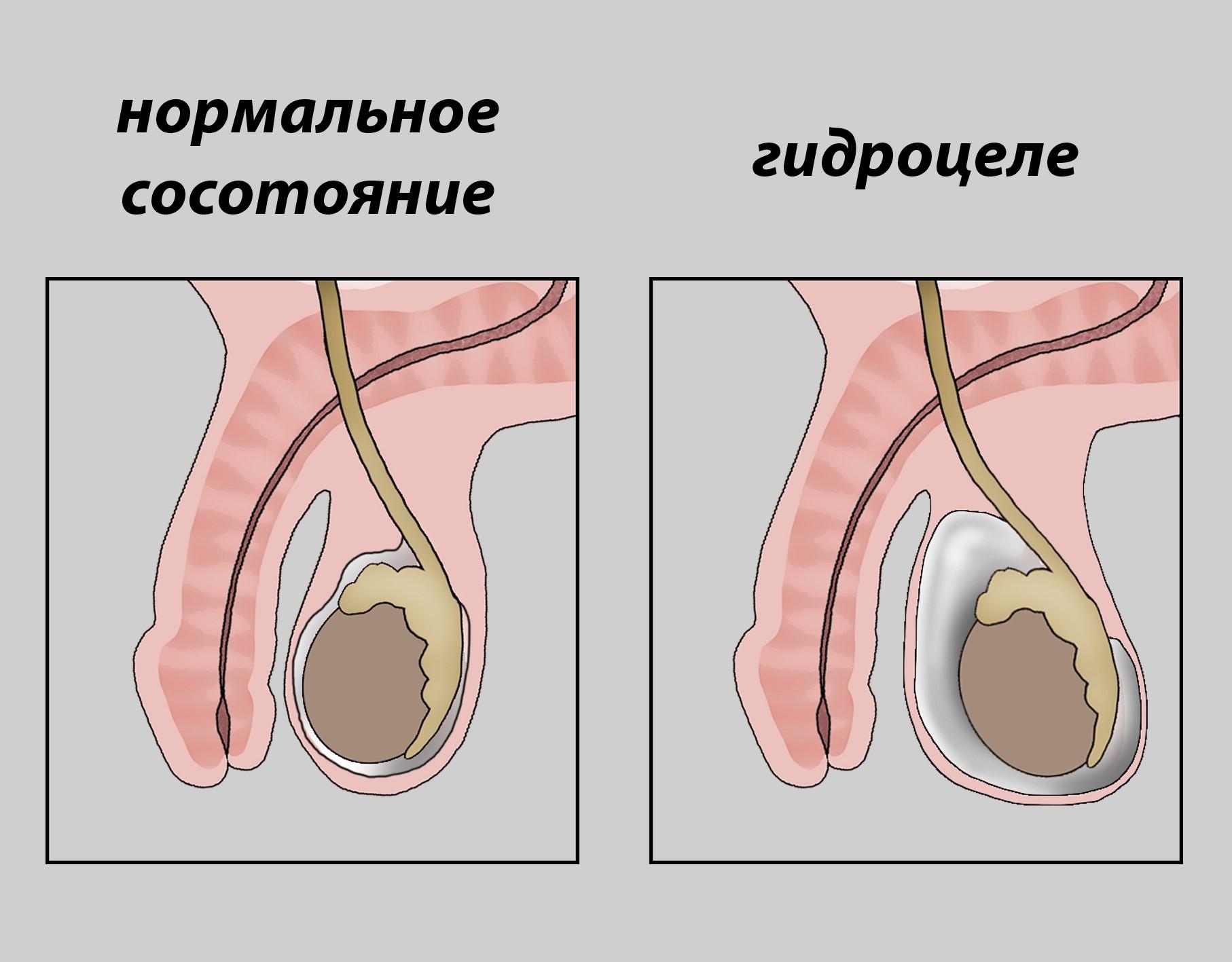 Водянка яичка у мужчин - причины, симптомы на фото и лечение