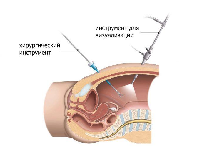 Схема доступа к почке при лапароскопической операции