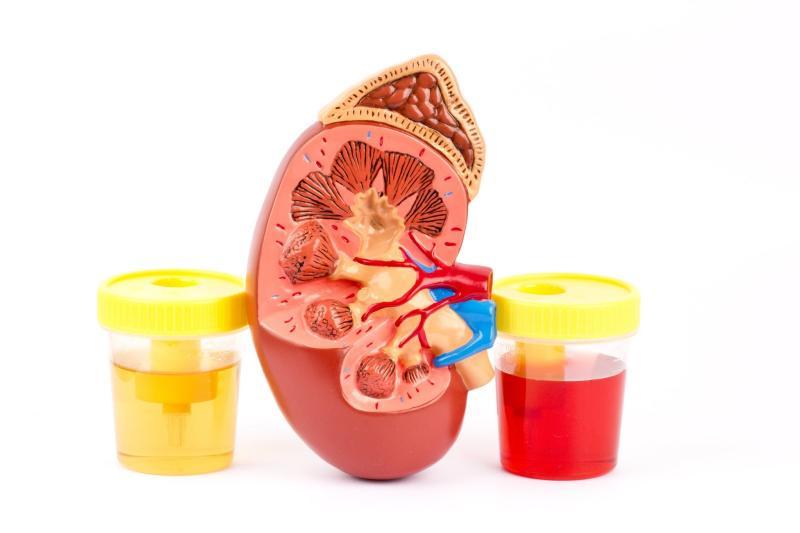 Кровь в моче у детей и подростков: причины и методы лечения