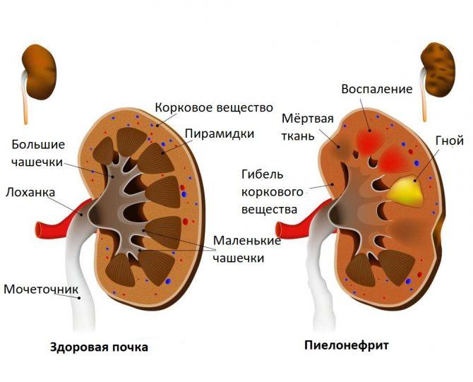 Патогенез пиелонефрита
