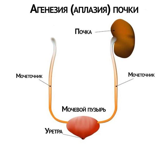 Аплазия почки