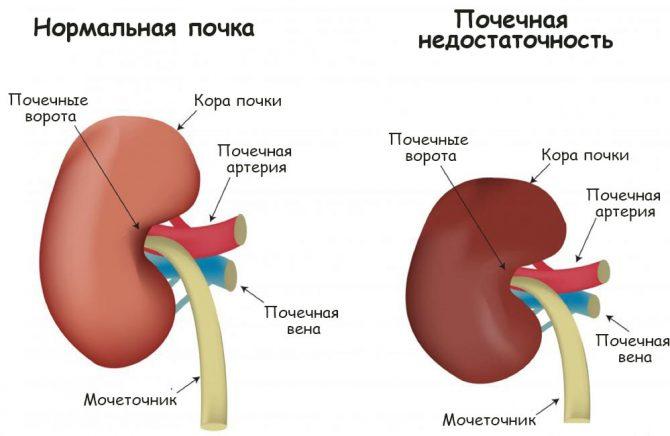 Нормальная почка и орган при хронической почечной недостаточности (схема)