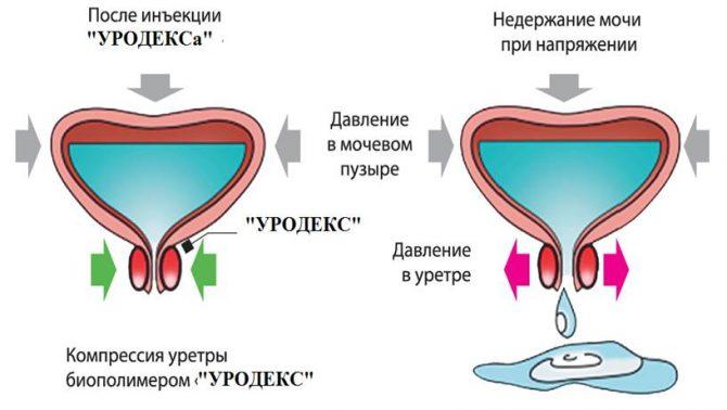 Применение препарата Уродекс