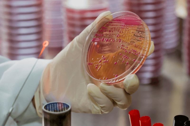 Бактериурия: безобидное явление или грозный симптом?