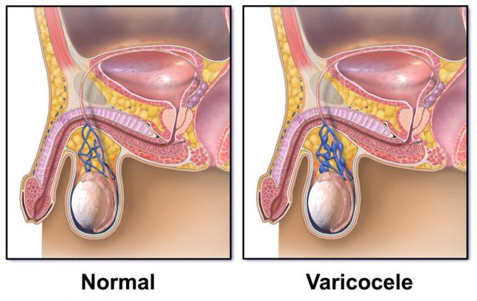 Вены семенного канатика в норме и варикоцеле