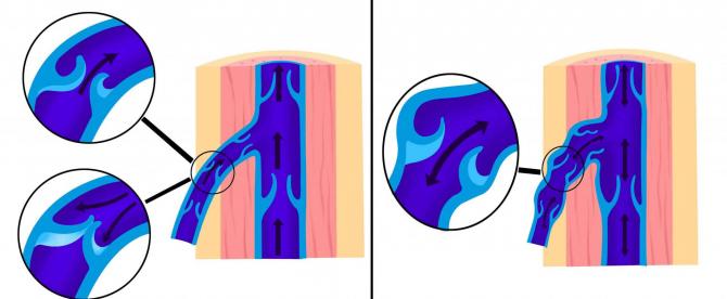 Расширение вен из-за недостаточности клапанов