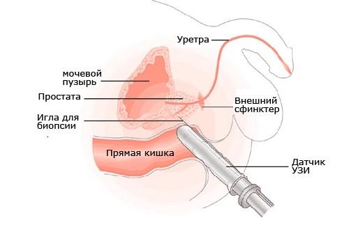 ТРУЗИ при везикулите