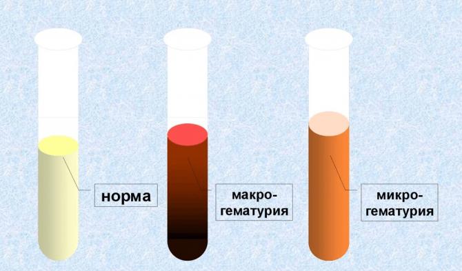 Микрогематурия, макрогематурия и норма
